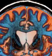 Huntington's disease: excitement as trial shows drug could slow down progression