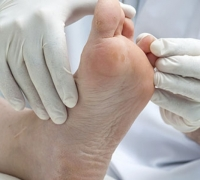 Agreement on podiatry clinic reform brings UHM to withdraw industrial action