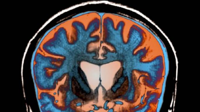Drug lowers deadly Huntington's disease protein