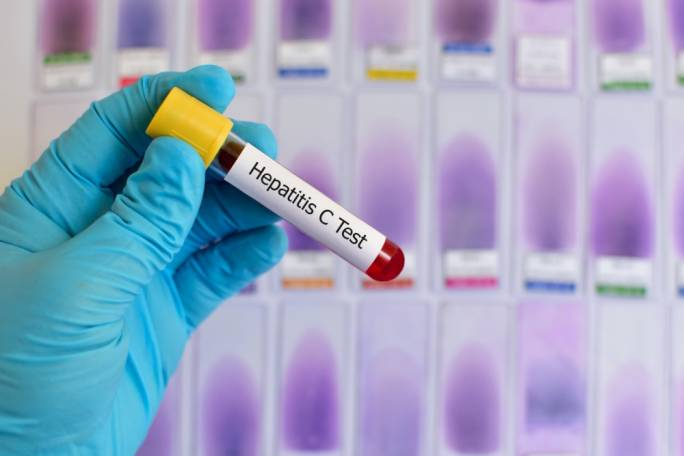 Malta plans to be the first country to eradicate Hepatitis C by 2025