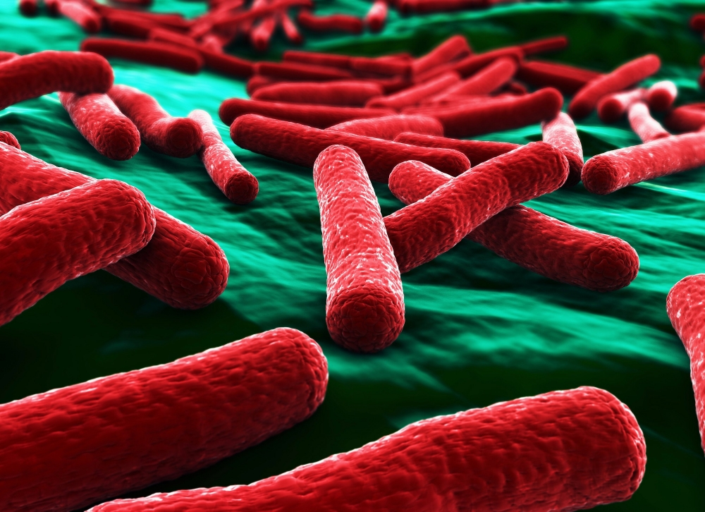 Four patients test positive to multi-drug resistant organism