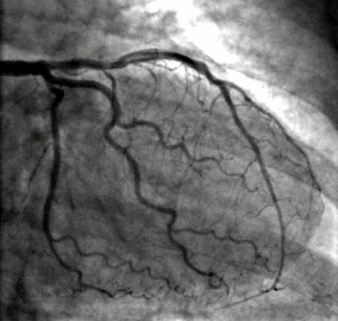8,396 angiograms in four years