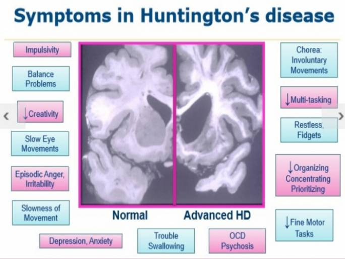 The symptoms of Huntington's disease (Photo: SlideShare)
