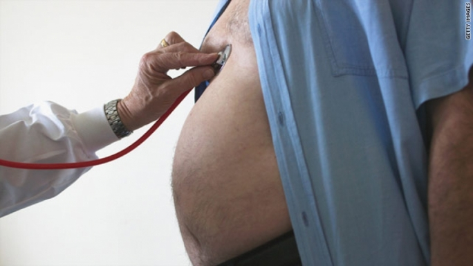 Obesity cost Malta €36.3 million in 2016