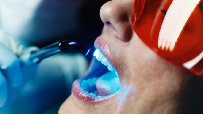 Dentists express concern over teeth whitening products