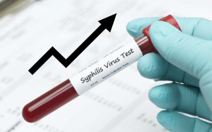 Malta had second highest rate of syphilis in the European Union in 2017